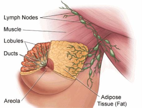 behandling af senfølger efter brystoperation